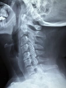 xray of neck pain due to an auto collision