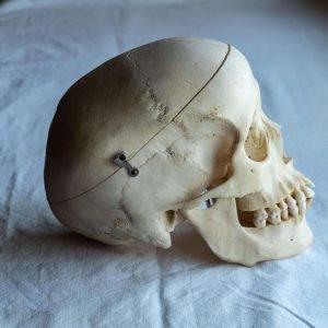 skull damage